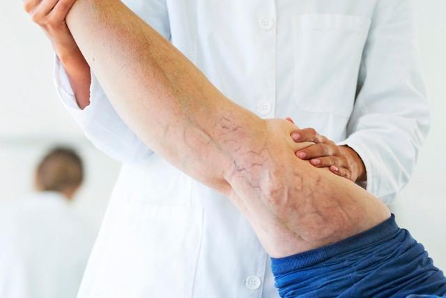 Restless Leg Syndrome - Blog Post